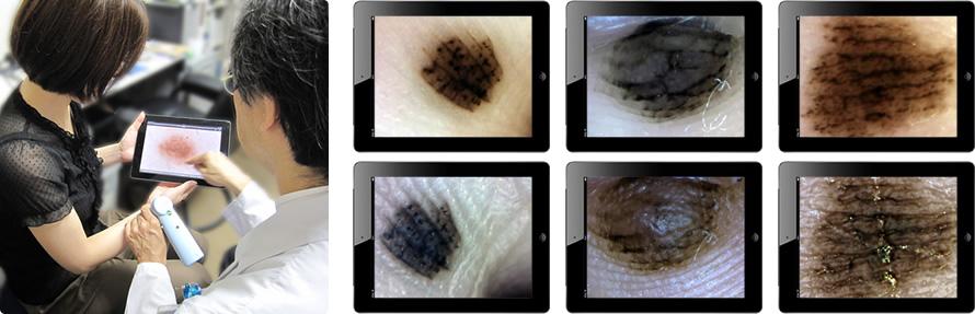 色素細胞母斑(ほくろ)